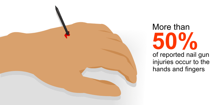 More than 50 percent of reported nail gun injuries occur to the hands and fingers.