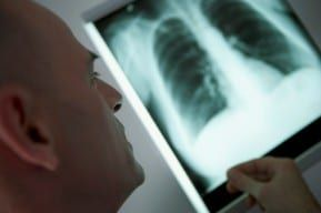 A New Jersey Mesothelioma lawyer review xrays while preparing a claim.