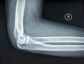 The New Jersey personal injury lawyers give good advice to victims of bone fractures and amputations.