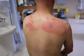 A serious burn injury on the back of a New Jersey burn injury lawyer