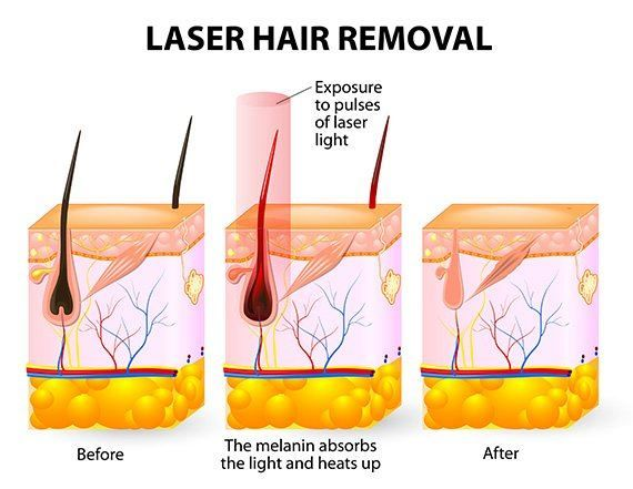 Laser Hair Remove Photo