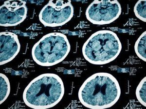 Our brain injury lawyers represent clients who have suffered a TBI due to negligence.