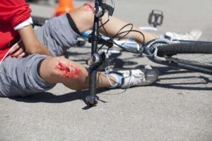injured cyclist laying on the floor after motor vehicle accident