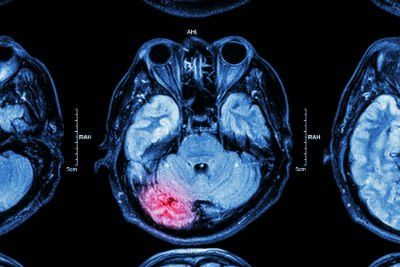 Our brain injury lawyers report on the impact of undetected traumatic brain injuries.