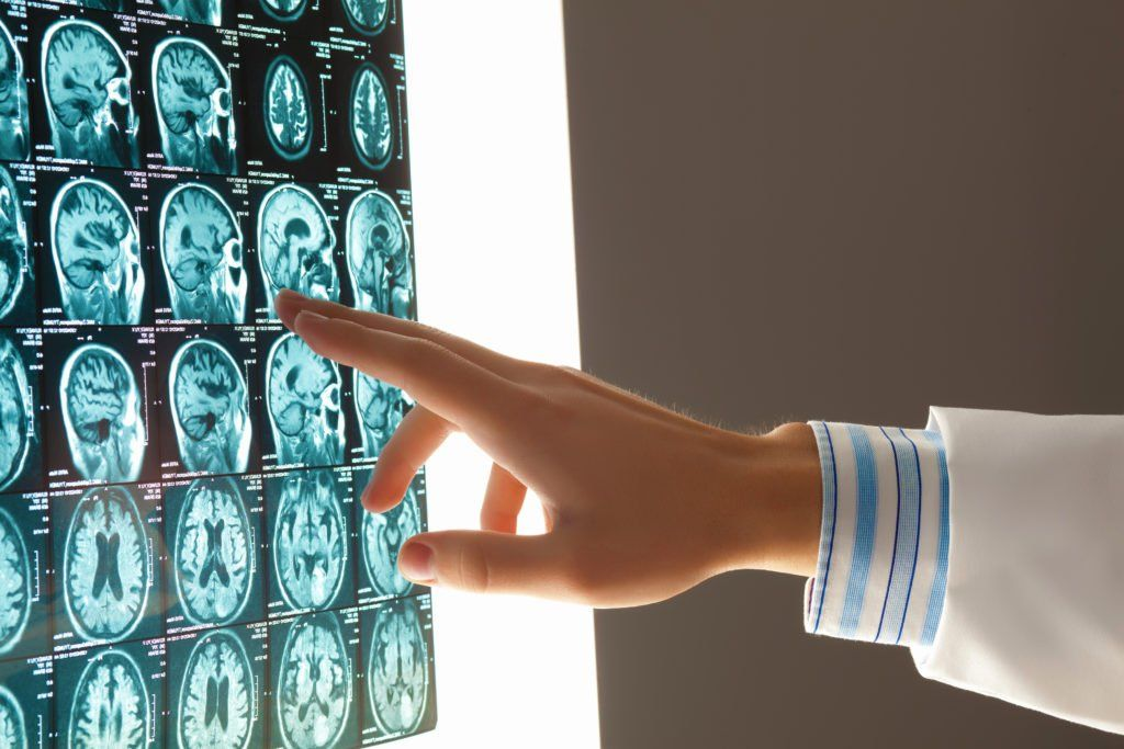 Doctor examines brain x-rays for traumatic brain injuries