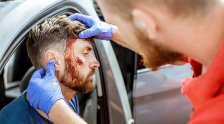 facial injuries and scarring