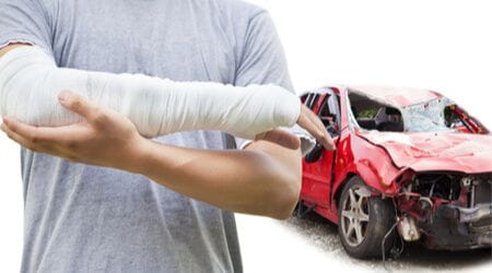 fractured arm after car accident