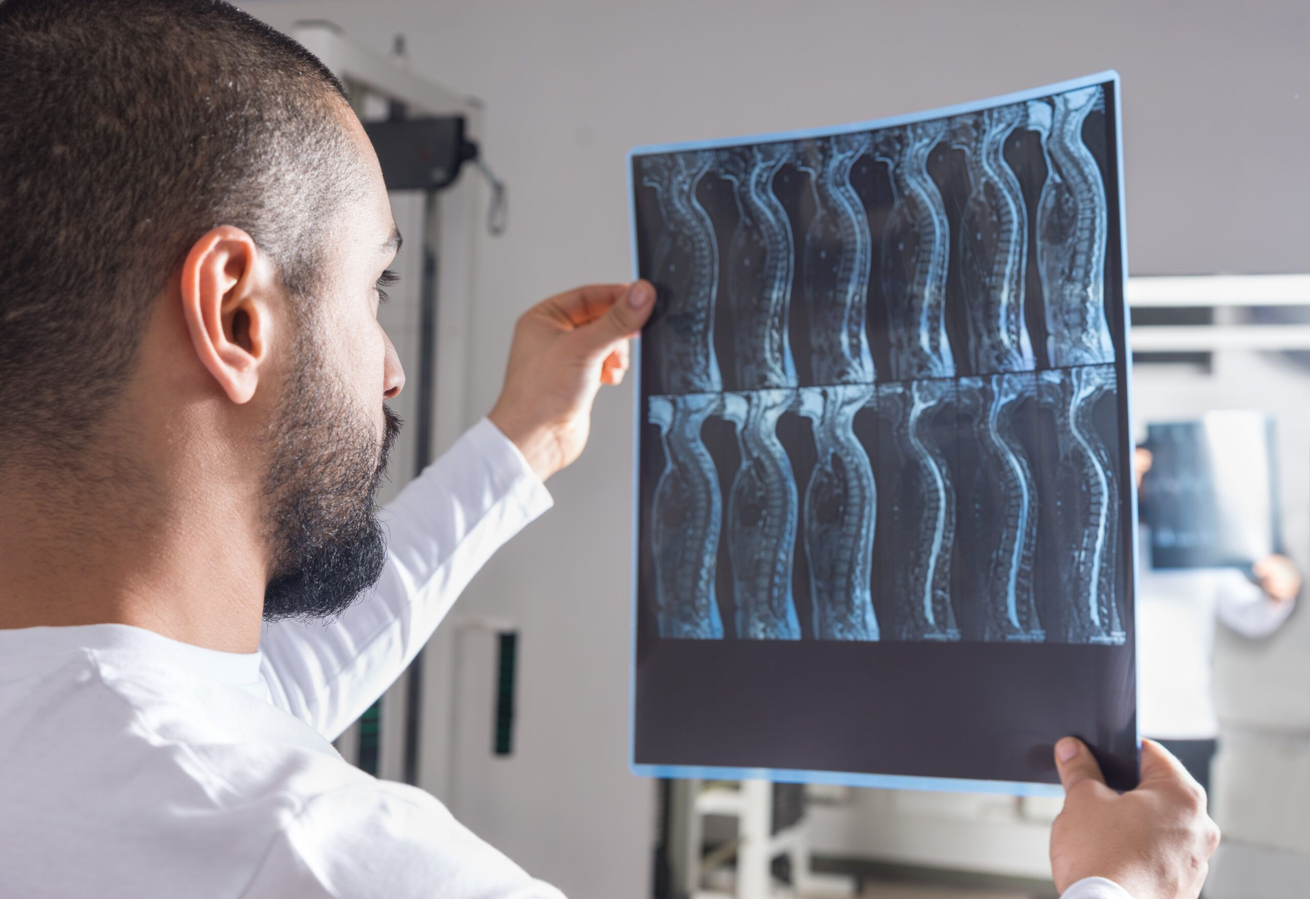 doctor looking at xray of spinal cord
