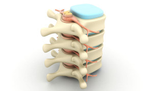 Our personal injury lawyers in Florida can help with a Facet joint injury due to the negligence of another
