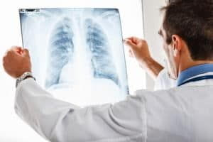 doctor is doing diagnosis of the lung x-ray report