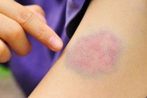 Charged for Assault? Contact our New Jersey Domestic Assault Lawyer for Help.