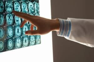 5 FAQs About Traumatic Brain Injuries