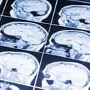 Common Car Injuries - Brain Injury