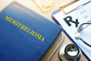 Chicago Mesothelioma Lawyer Asbestos Exposure Lawyer