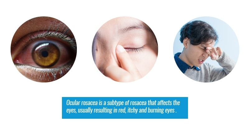 Signs and Symptoms of Ocular Rosacea