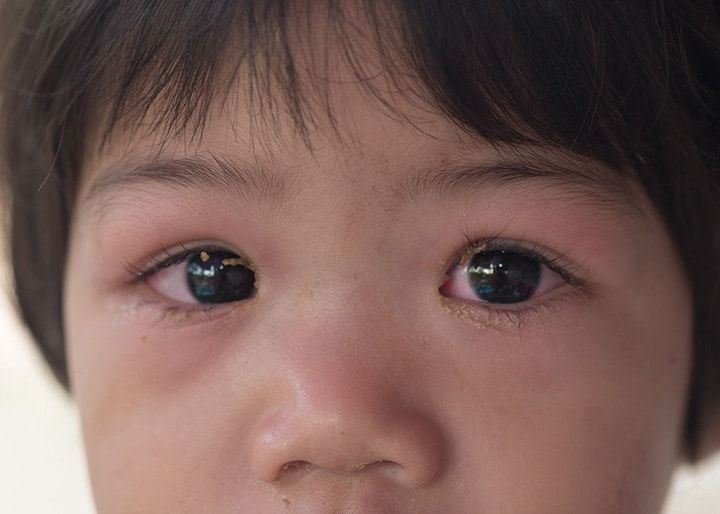 Eye Inflammation: The Hallmark of All Ocular Surface Disease