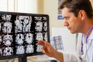 Different Types of Traumatic Brain Injury