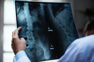 Causes, Symptoms, and Treatment for Broken Rib Injuries following a Truck Accident