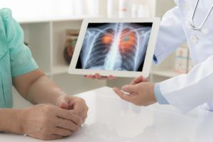 Doctor explaining x-ray scan results to cancer patient.