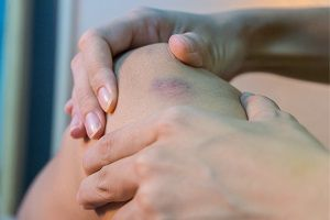 a soft-tissue injury after an accident