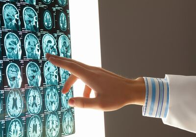 doctor reviewing scans from a brain injury