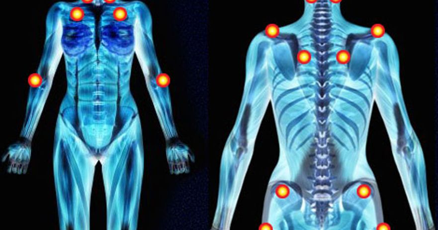 causes of fibromyalgia