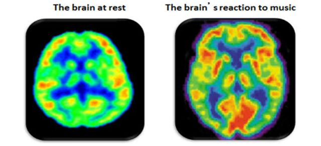 how music affects brain
