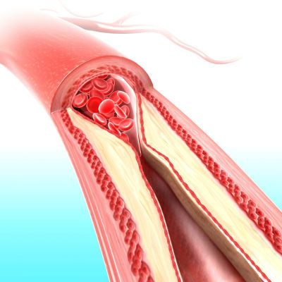 health dangers of cholesterol levels too low