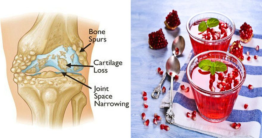 get rid of joint pain