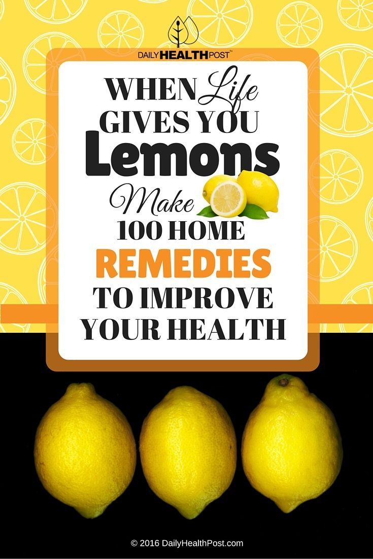 01 When Life Gives You Lemons, Make 100 Home Remedies to Improve Your Health