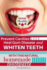 01 Prevent Cavities, Heal Gum Disease, and Whiten Teeth With This Natural Homemade Toothpaste