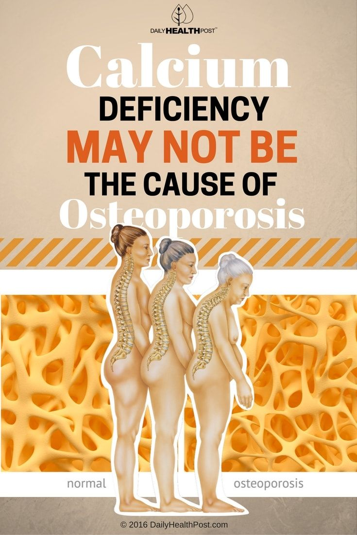 calcium-deficiency-may-not-be-the-cause-of-osteoporosis