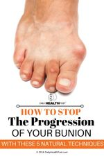how-to-stop-the-progression-of-your-bunion-with-these-5-natural-techniques