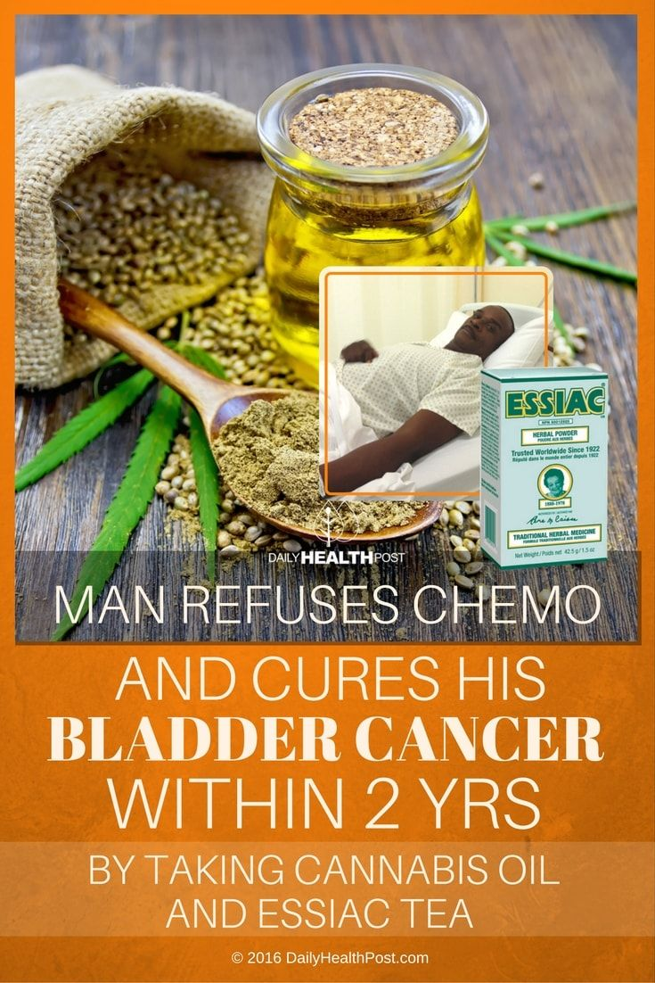 man-refuses-chemo-and-cures-his-bladder-cancer-within-2-yrs-by-taking-cannabis-oil