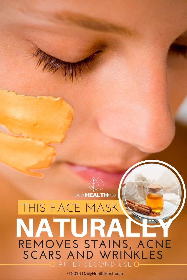 this-face-mask-naturally-removes-stains-acne-scars