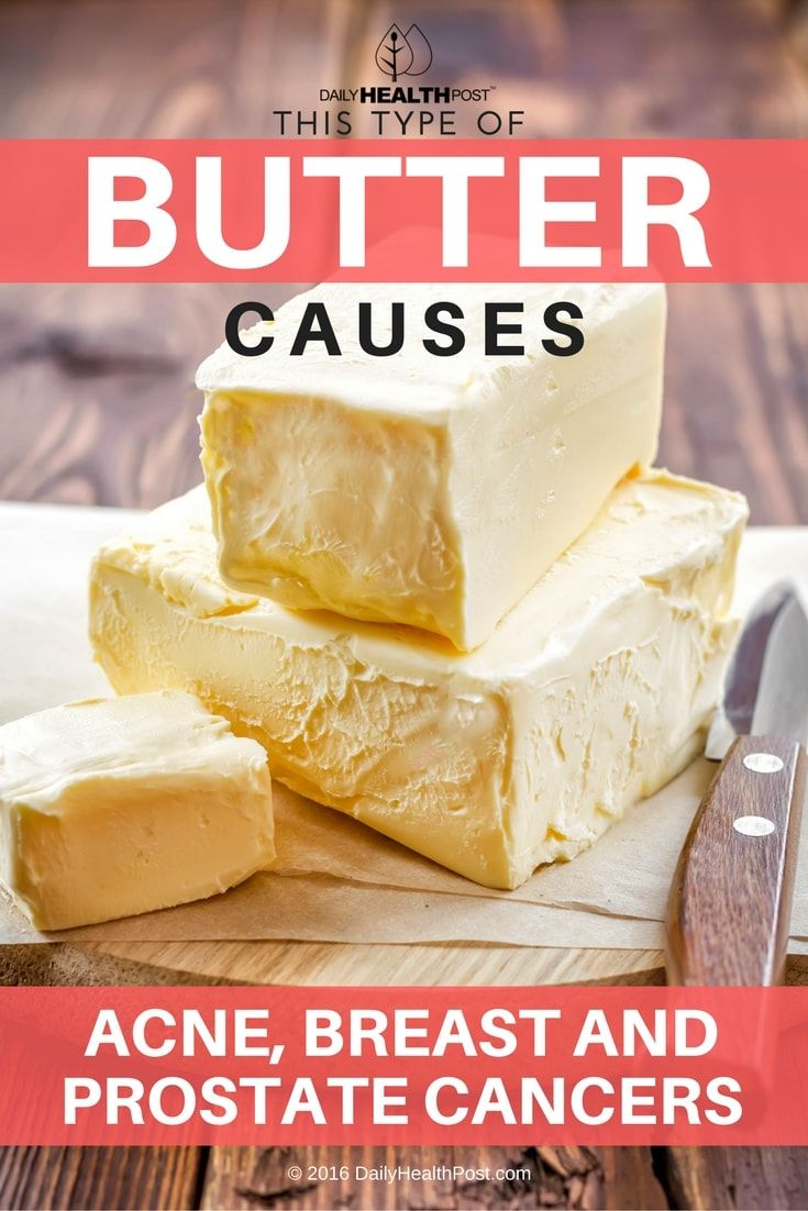 this-type-of-butter-causes-acne-breast-and-prostate-cancers