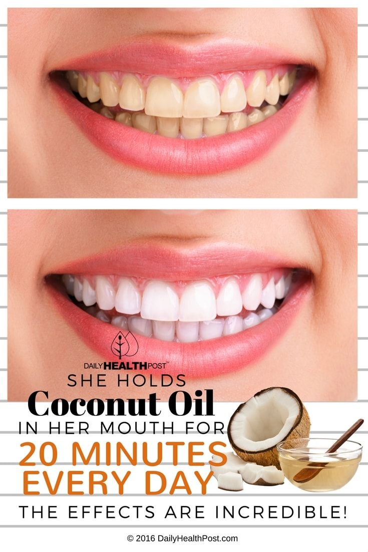 she-holds-coconut-oil-in-her-mouth-for-20-minutes-every-day