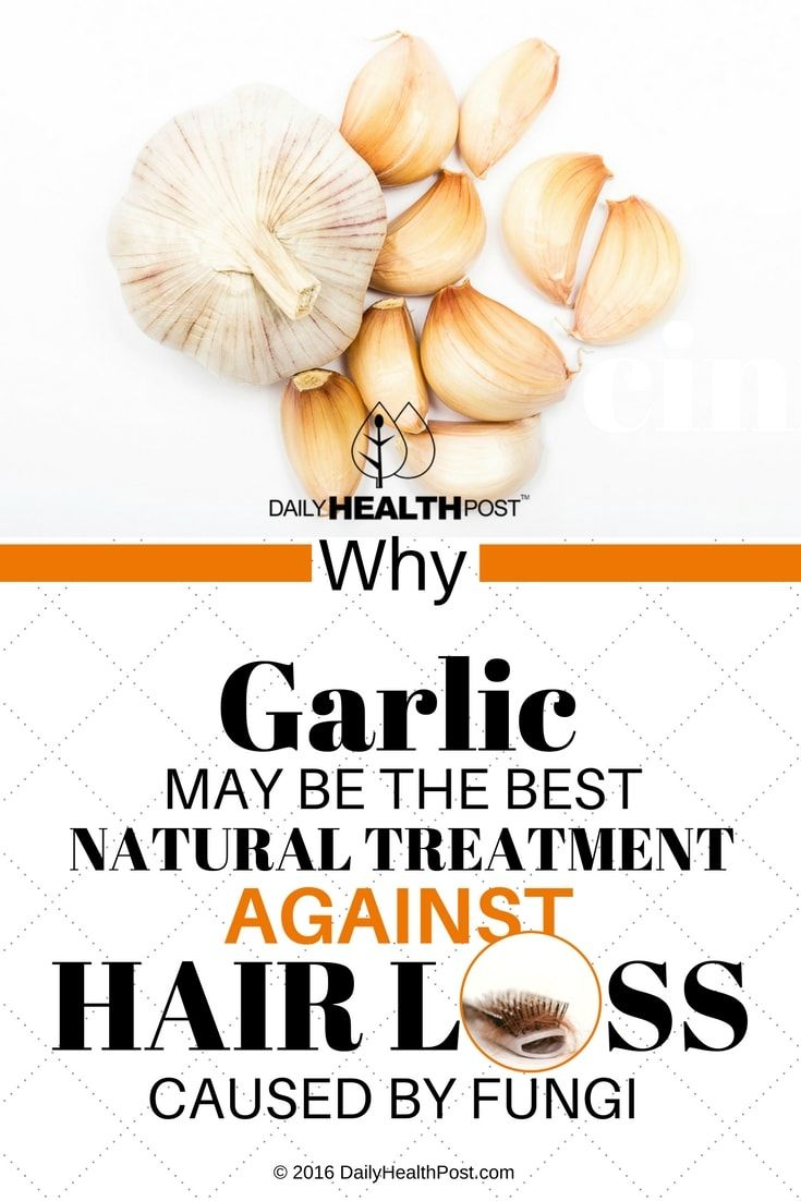 why-garlic-may-be-the-best-natural-treatment