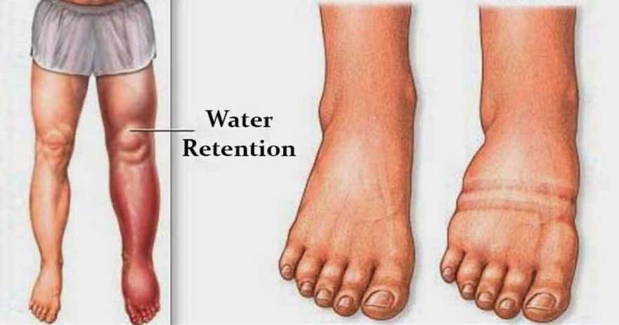 water retention causes