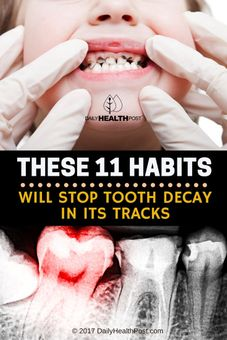 stop tooth decay