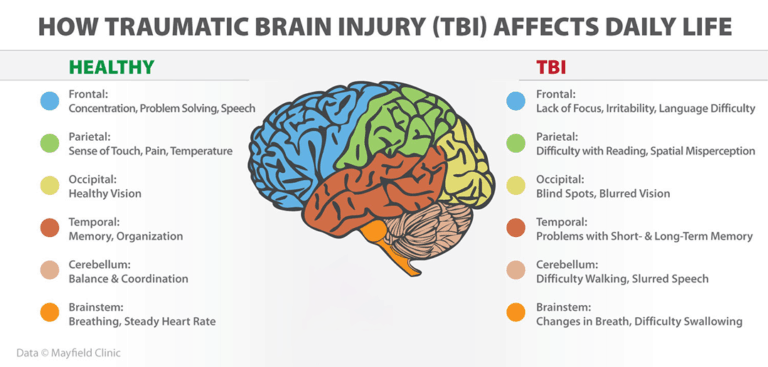 What are some long-term effects of TBI? - Quora