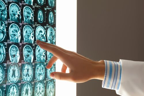An expert witness consults on a brain injury claim in Tampa Bay.