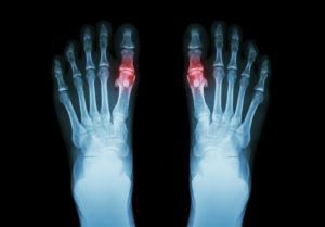 xray of feet with gout, treated by the medication Uloric which has had a new warning from the FDA added to the label due to dangerous side effects.