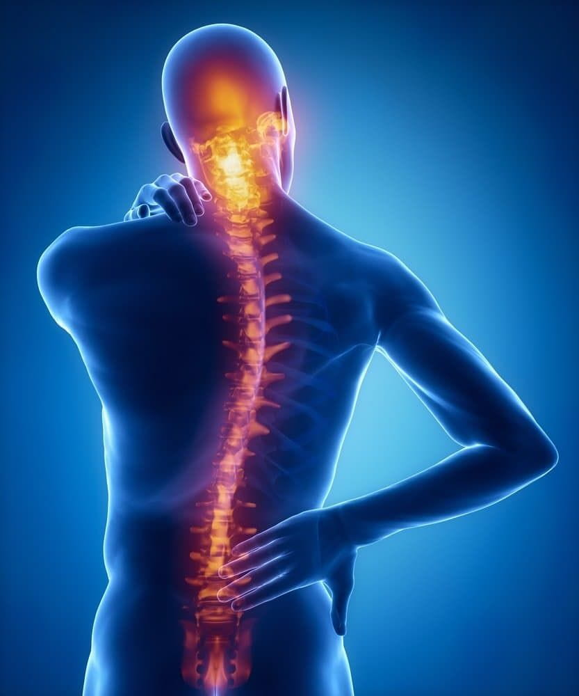 Spinal injury pain in sacral cervical region.