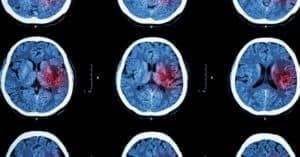 Brain injury scan result of patient from car accident.