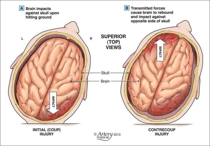 Traumatic Brain Injury from Accident: Coup Contrecoup