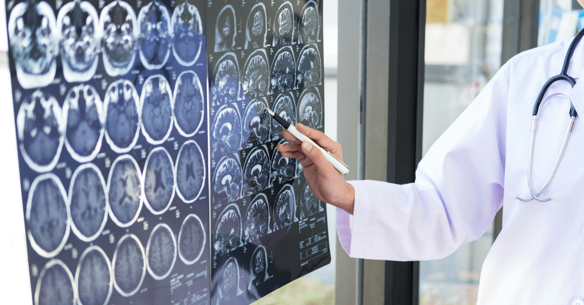 TBI law: Neurologist can't testify under closed-head injury exception because TBI patients are less than 5% of practice