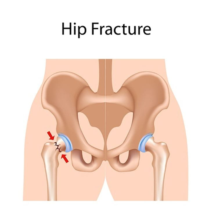 Medical illustration of a hip fracture caused by an accident.