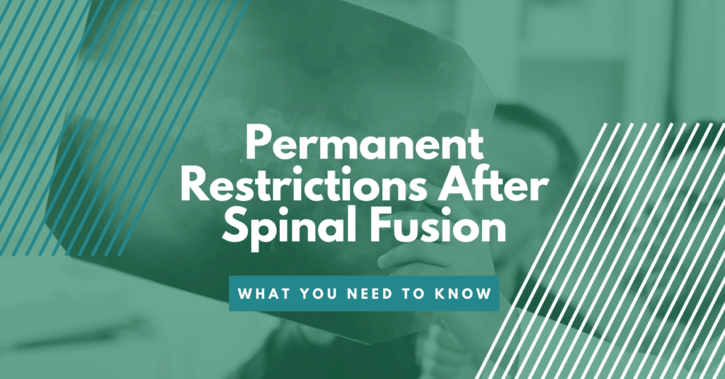 Permanent Restrictions After Spinal Fusion: What You Need To Know
