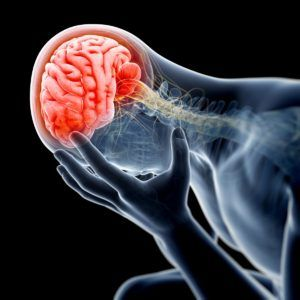Neurological Issues After a Car Accident